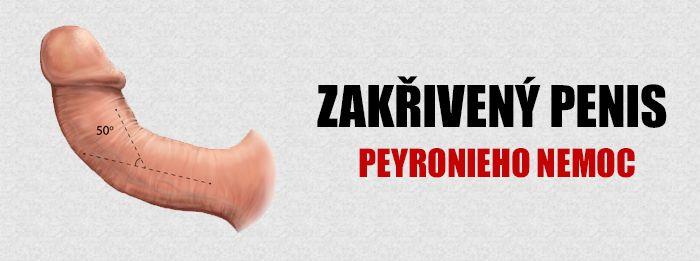Zakřivení penisu | Peyronieho choroba - Možné příčiny, příznaky a léčba